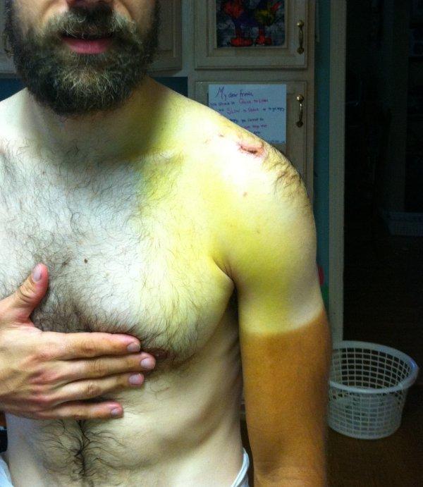 Friday - bruising extending lower (yellow areas)