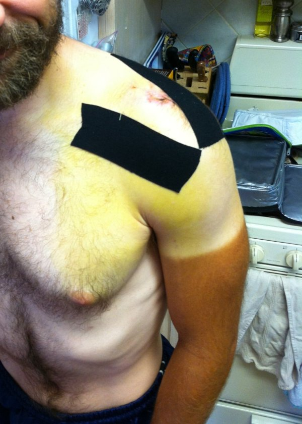 Saturday - bruising even lower (tape from visit with awesome PT - Chris Allison)