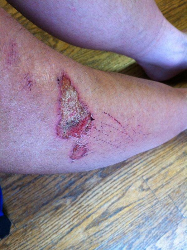 Thursday - road rash below knee