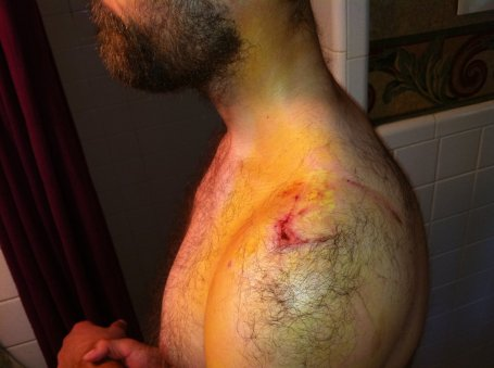 Thursday - shoulder and neck bruising (yellow areas)