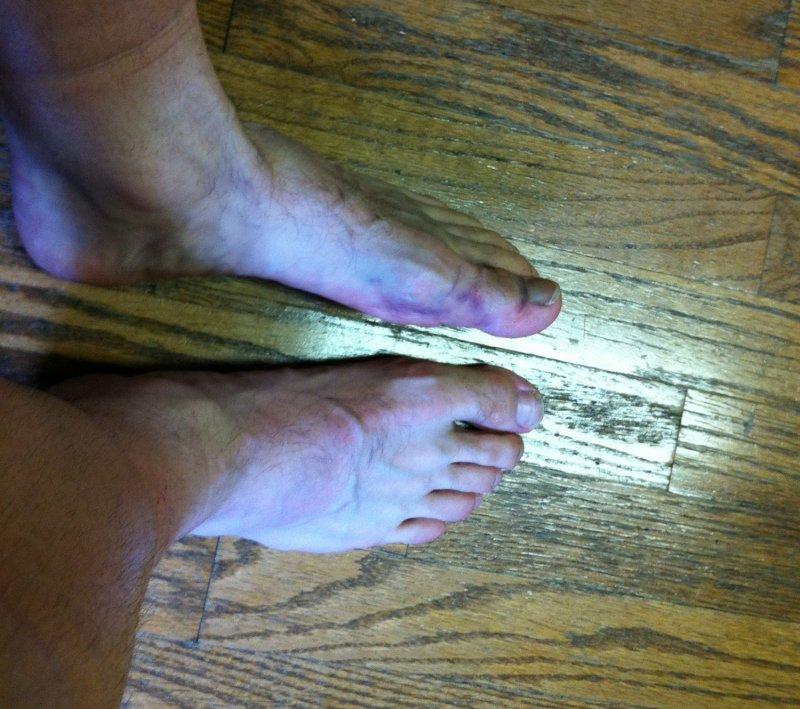 Thursday - broken toe bruising and swelling