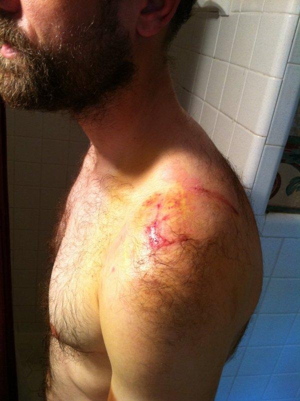 Wednesday - shoulder swelling (notice lack of definition where shoulder ends)