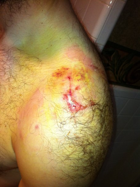 Wednesday - shoulder bruising (yellow areas)