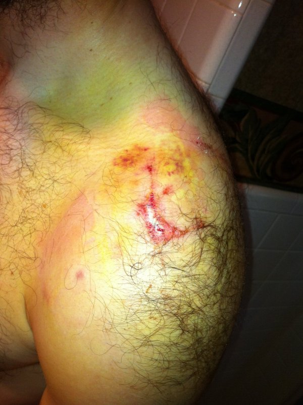 Wednesday - shoulder bruising (yellow areas)